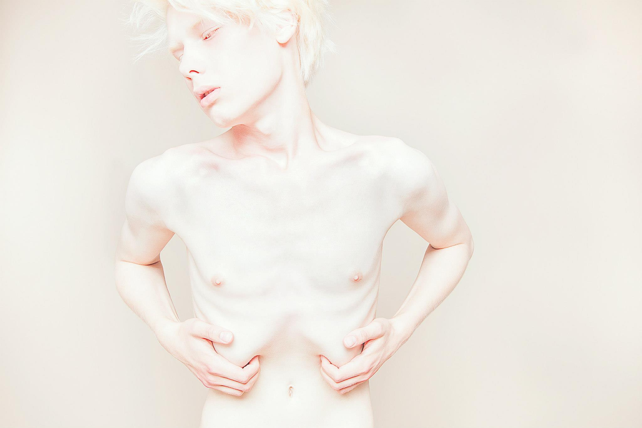 Albino nude people — photo 13